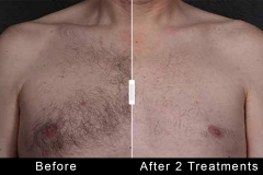 Hair Removal - Chest