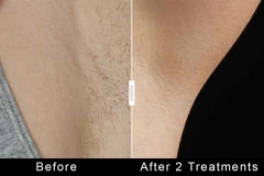 Hair Removal - Underarm