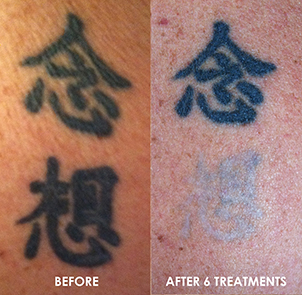 Before and After Treatments