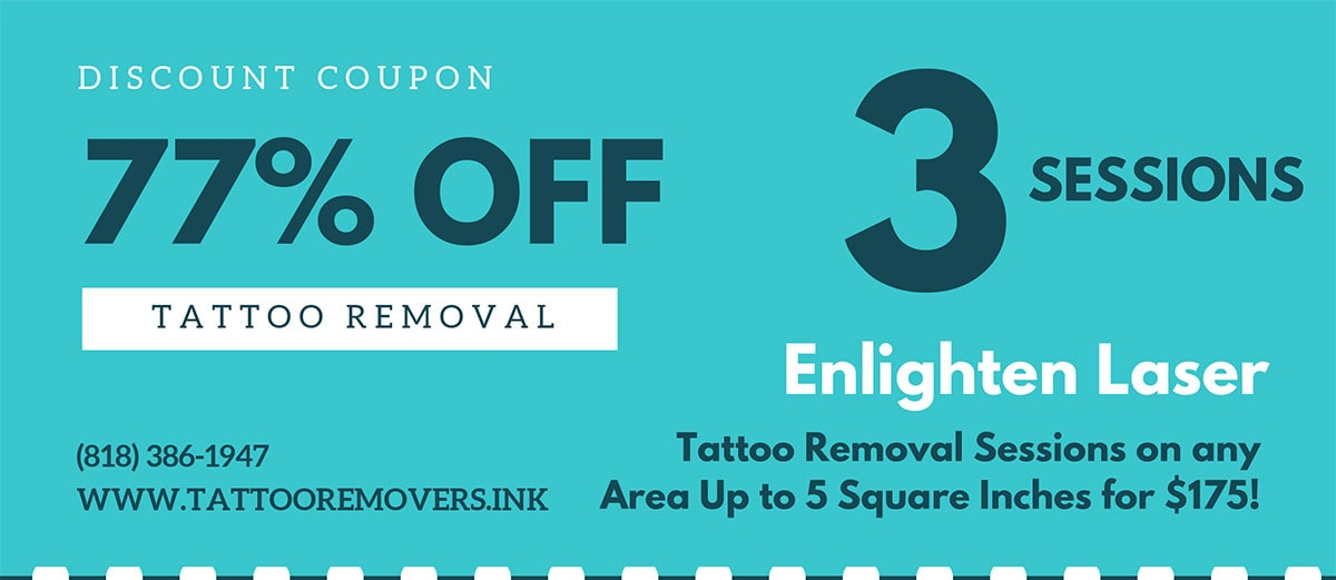 Laser Tattoo Removal Discount